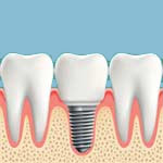 Dental Implants Dedham MA