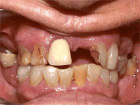 Immediate Dentures Dedham MA