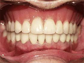Complete Dentures Dedham MA