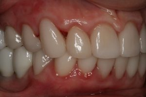After Veneers and Implants