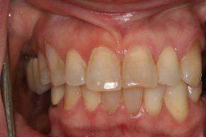 Before Veneers and Implants