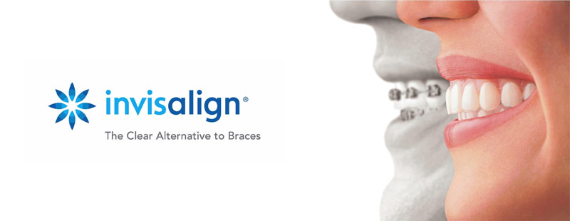 Invisalign Clear Braces Dedham MA