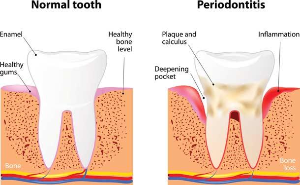 Periodontal Disease - Gum Disease Treatment Dedham MA