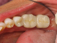 Porcelain Crowns for Teeth