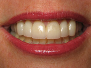 Porcelain Veneers for Teeth