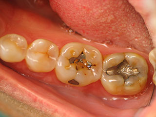 White Fillings for Teeth