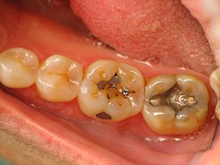 White Fillings for Teeth