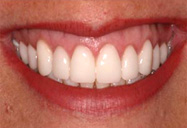 Zoom! Teeth Whitening Dedham MA