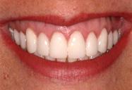 Zoom! Teeth Whitening Dedham MA
