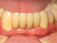 Permanent Dental Bridges for Teeth