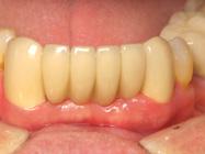 Permanent Dental Bridges for Teeth