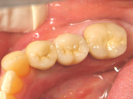 Implant Teeth Dedham Massachusetts